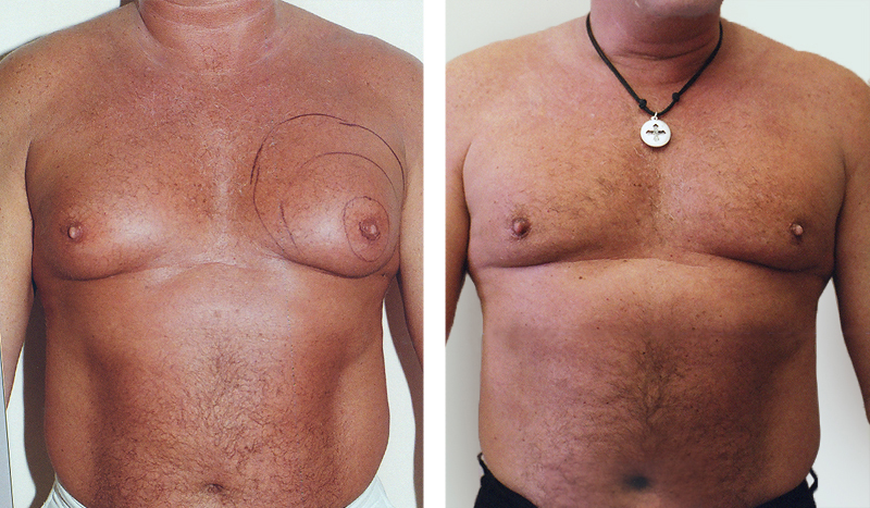 mens breast reduction