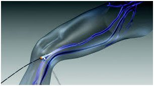 Radiofrequency ablation for varicose veins in India & Cost (RFA ...