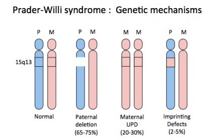 Bariatric Surgery for Prader Willi Syndrome Cause,Tests,Treatment ...